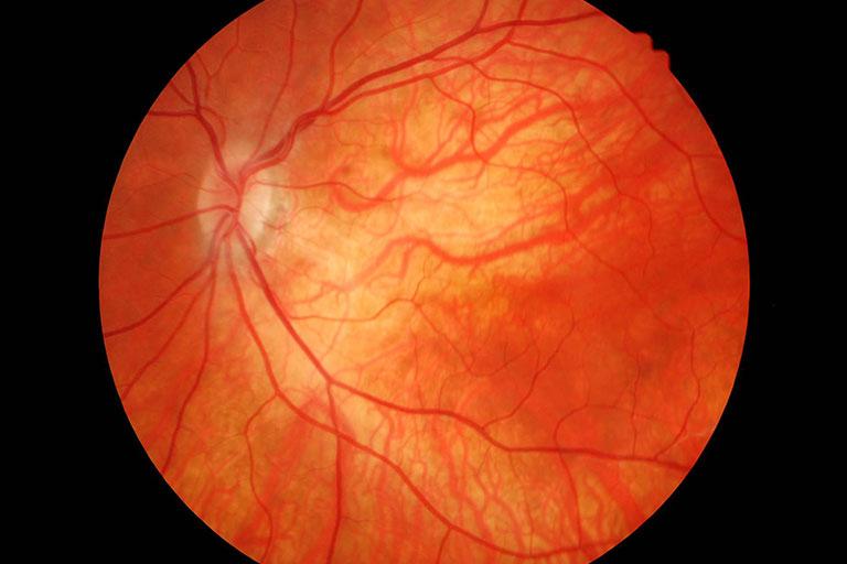 Tudo que você precisa saber sobre retina